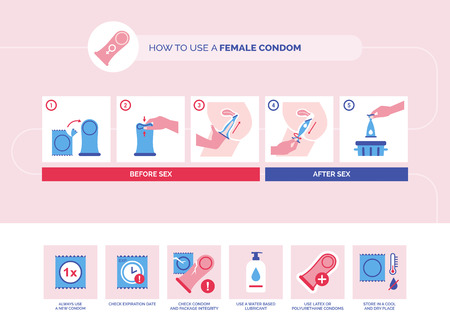 How to use a female condom instructions and tips: contraception and sexually transmitted disease prevention Stock Vector - 117962594