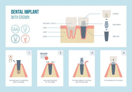 Dental implant medical procedure and structure, dentistry and orthodontics concept 向量圖像