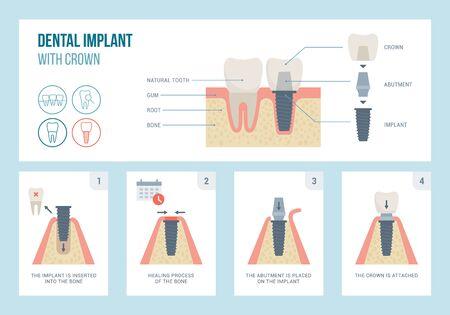 Estructura y procedimiento médico de implantes dentales, concepto de odontología y ortodoncia