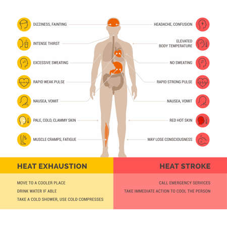Heat exhaustion and heat stroke healthcare infographic: symptoms and first aid Vettoriali