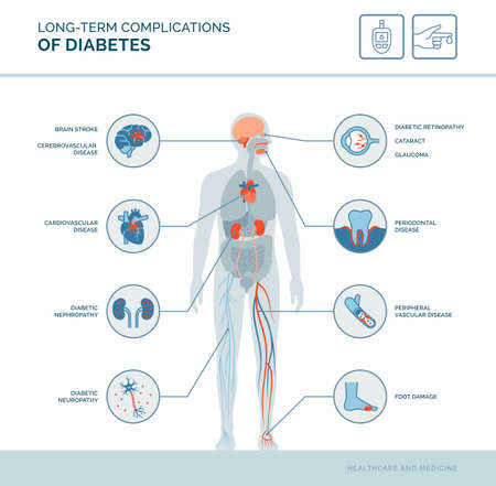 Long-term complications of diabetes medical infographic: diabetes effects on the body 向量圖像
