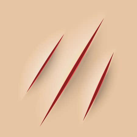 Égratignure sur la peau. Sang rouge. Illustration vectorielle de rasoir coupé