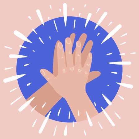 High five hands. Two hands giving high five. Success teanwork concept