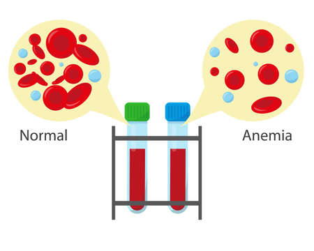 Tubes with normal blood and leukemia blood for medical concept. Blood analysis or leukemia test banner. Vector illustration.