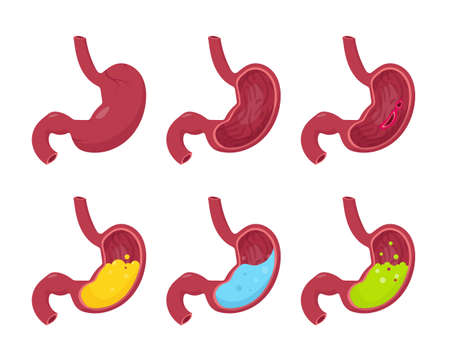 Human stomaches set isolated on white background. Human stomach outside and cross section inside - with water, food, green liquid, healthy and pathology. Vector illustration.