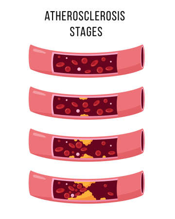 Atherosclerosis stages vector illustration on white  イラスト・ベクター素材
