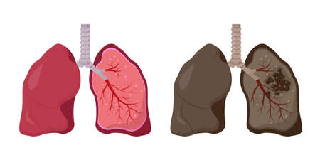 Healthy and unhealthy human lungs. Normal lung vs lung cancer. Anatomy diagram on white background. Human organ icon. Vector illustration.