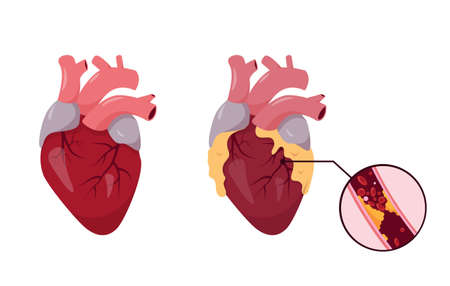 Healthy and unhealthy human Heart. Ischemic Disease. Blocked coronary artery with Atherosclerosis. Vector illustration on white background.  イラスト・ベクター素材