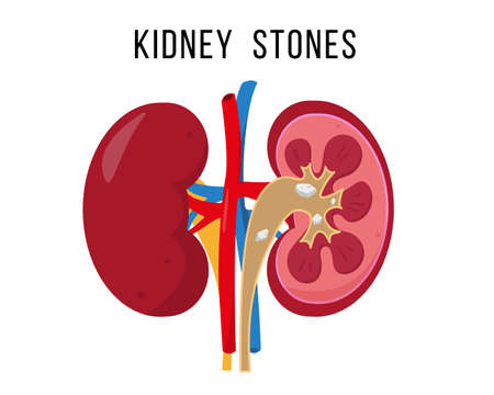 Kidney stone disease. Human diseased urinary system.