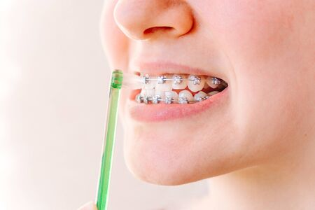 Female mouth with braces and a special brush for interdental spaces close-up on a light background