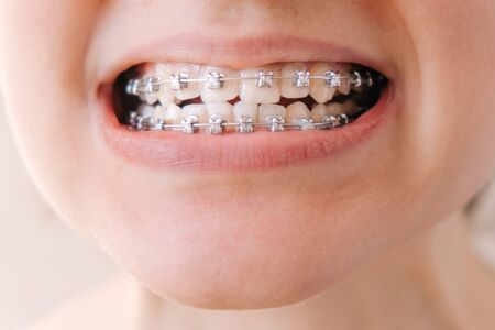 Female mouth with braces close-up, correction of malocclusion Stockfoto