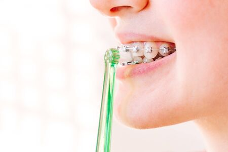 female mouth with braces closeup with toothbrush in profile