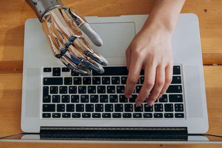 Woman uses metal bionic arm to type on laptop keyboard