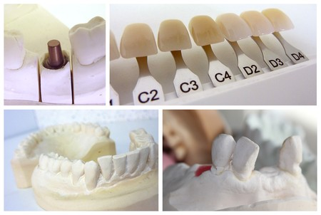 shade: Dental technician collage with plaster mouth, implant abutment and dental shade guide