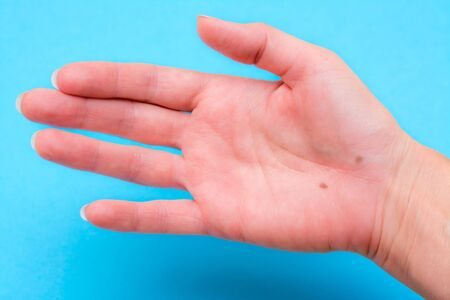 Open female palm with two moles on a blue background Stockfoto