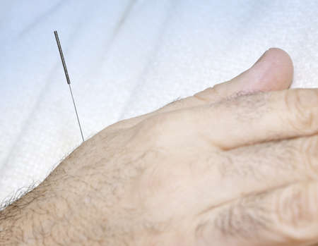 Closeup of acupuncture needle inserted in male hand Stock Photo - 9376462