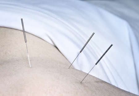 treatment: Closeup of acupuncture needles inserted in mans shoulder