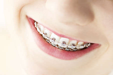 orthodontic: Closeup on braces and white teeth of smiling girl