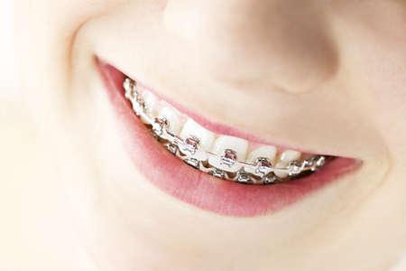 ortodoncia: Primer plano sobre el soporte y los dientes blancos de la sonriente ni�a