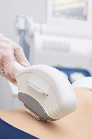 Laser hair removal. Hair removal on the body. Bright skin. Medical procedure.