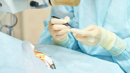 Lasermikroskopische Operation in der Augenheilkunde. Arzt in der Klinik. Geduldige Augenbehandlung. Entfernung von Myopie und Katarakt.