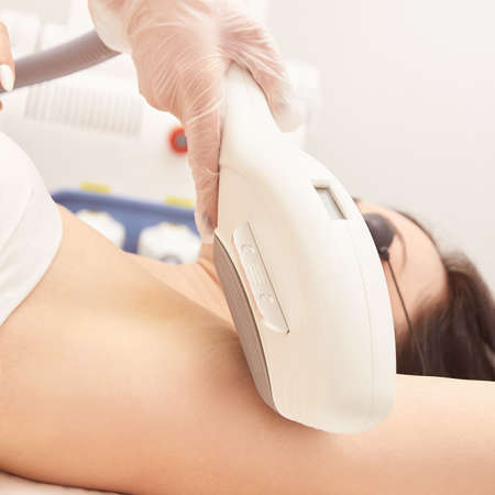 Laser elos medical device. Remove unwanted hair and asteriks. Cosmetology spa procedure at salon. Amprit epilation.