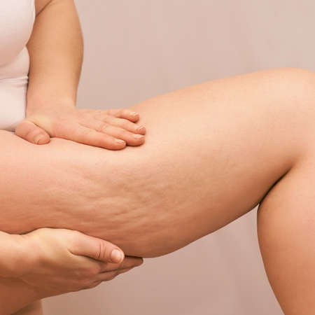 Cellulite leg woman pinch. Test fat hips treatment. Over weight liposuction. Remove striae.