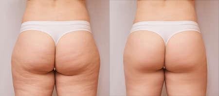 Fat woman before and after. Back loss cellulite. Liposuction female leg concept. Butt shape ass massage.