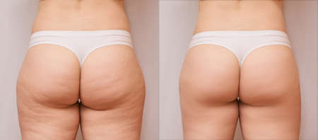 Fat woman before and after. Back loss cellulite. Liposuction female leg concept. Butt shape massage.