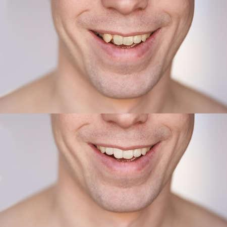 Vorher nachher Klammerkonzept. Mann lächeln Nahaufnahme Collage. Männliche Person. Verfahren zur zahnärztlichen Mundpflege. Stomatologische Behandlung