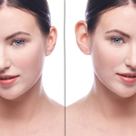 Girl before and after cosmetology plastic surgery. Problem operation result. Healthcare patient removal procedure. Aesthetic human treatment. Female perfect body concept