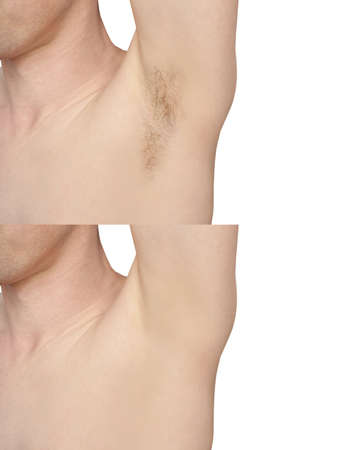 Girl underarm. White man armpit. Before and after epilation collage. Wax depilation result concept. Laser hair removal. sugaring spa procedure. Health care home routine. IPL treatment. Isolated