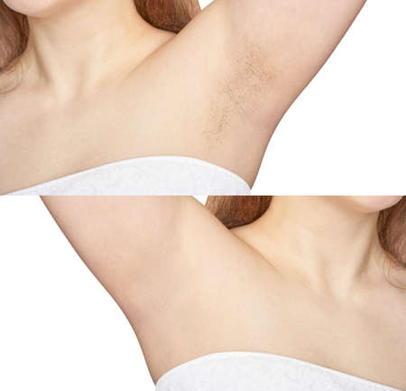 Girl underarm. White woman armpit. Before and after epilation collage. Wax depilation result concept. Laser hair removal. sugaring spa procedure. Health care home routine. IPL treatment. Isolated