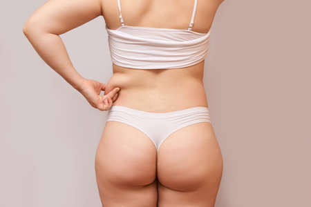 Fat unhealthy woman body. Pinch back side. Measurement lady procedure. Medicine pinching. Anti cellulite overweight. 版權商用圖片