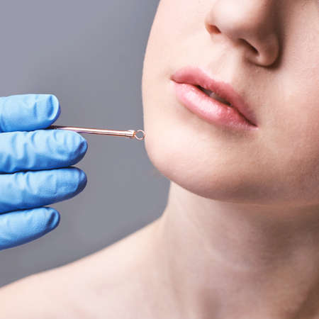 Loop device for medical design. Woman skin procedure. Cosmetic products.Hands in gloves. Beauty face. Facial cosmetology treatment. Healthcare anti acne. Apply to female. Detox therapy. Rejuvenation Stock Photo