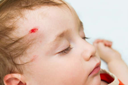the little baby is sleeping with a wound on his forehead photo