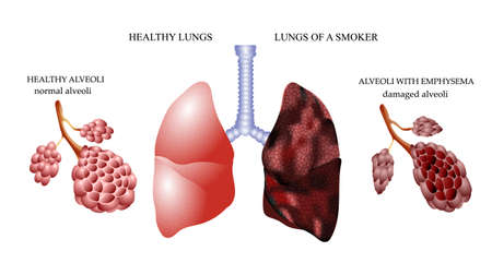 illness: the dangers of Smoking, the lungs of a healthy person and smoker alveoli Illustration