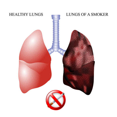 inhalation: the dangers of Smoking, the lungs of a healthy person and smoker Illustration