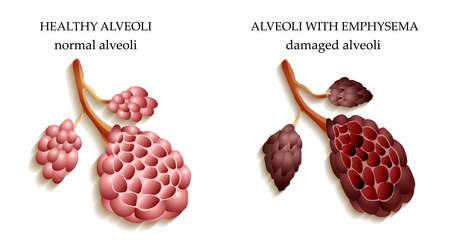 alveolos: los peligros de fumar, los pulmones de una persona sana y fumador alvéolos
