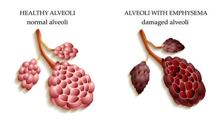 alveoli: the dangers of Smoking, the lungs of a healthy person and smoker alveoli Illustration