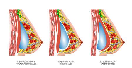 pechos: La anatom�a de los implantes de mama femeninos