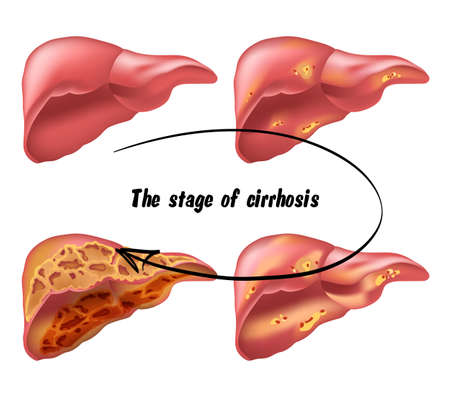 hepatic: medical structure of the liver, illustration