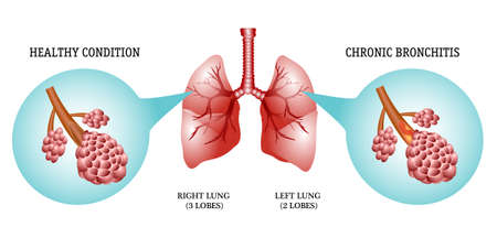 lungs: the anatomical structure of the lungs, the disease is bronchitis