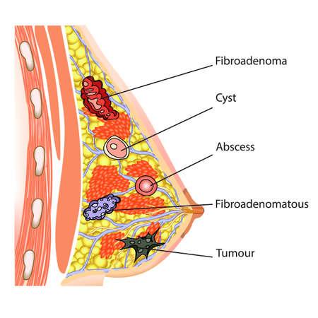 De anatomie van de vrouwelijke borst