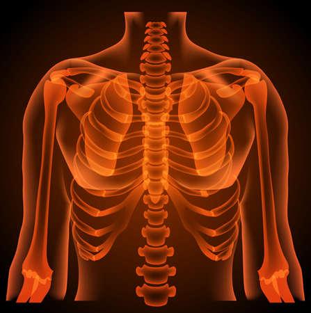 torso: surgeon radiologist medical examaning lung torso  x-ray