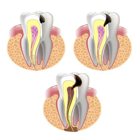 齲蝕の段階。表面齲蝕。深い齲蝕歯髄炎歯周炎。