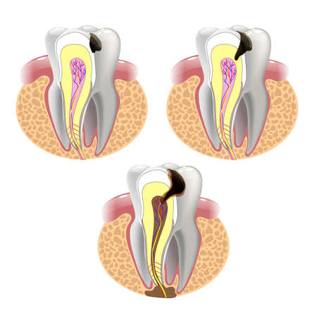The stages of caries development. Surface caries.Deep caries  Pulpitis Periodontitis. 版權商用圖片 - 54649586