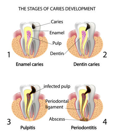 De ontwikkelingsstadia cariës. Surface caries.Deep cariës Pulpitis Parodontitis. Stock Illustratie