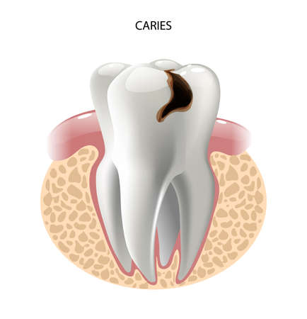 root canal: vector image tooth caries disease. Surface caries.Deep caries  Pulpitis Periodontitis. Illustration
