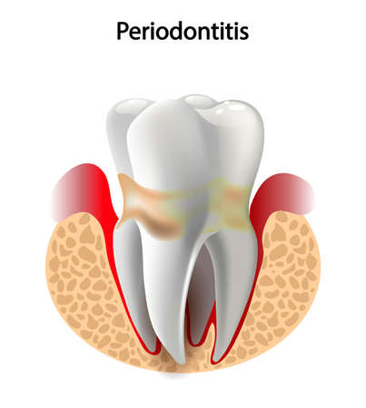 canals: vector image tooth caries disease. Surface caries.Deep caries  Pulpitis Periodontitis. Stock Photo